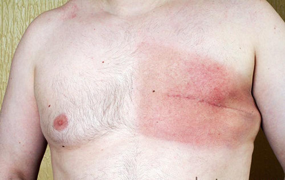 điều trị ung thư vú ở nam giới