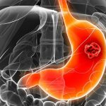 giai đoạn của ung thư dạ dày